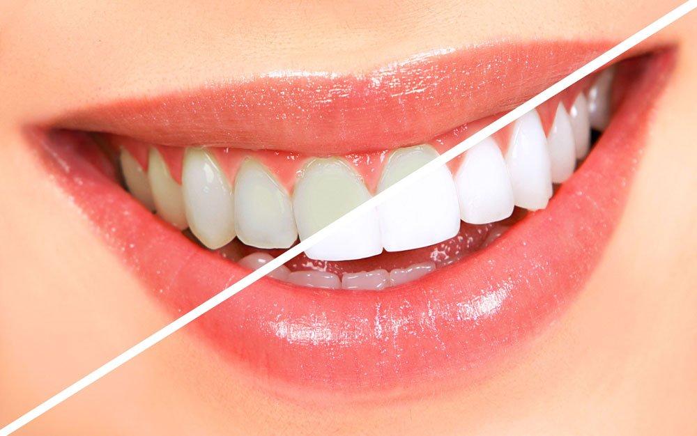 dental-stock-12